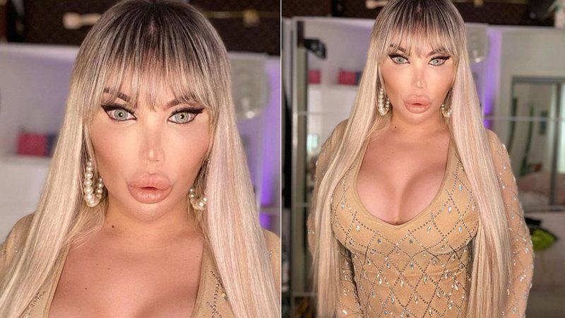 Após 70 plásticas, Ken Humano vira Jéssica Alves faz nova cirurgia, veja o antes e depois