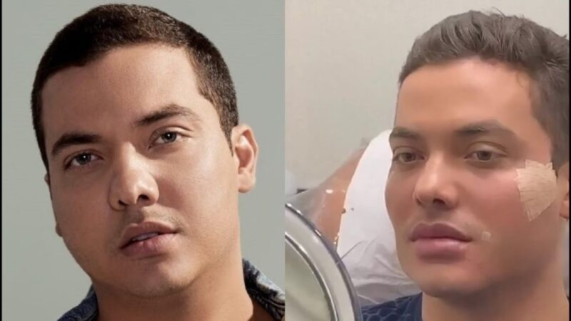 Wesley Safadão faz harmonozação facial e revela motivo
