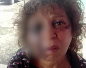Diarista tenta evitar que patrão agrida esposa e acaba sendo espancada e morta